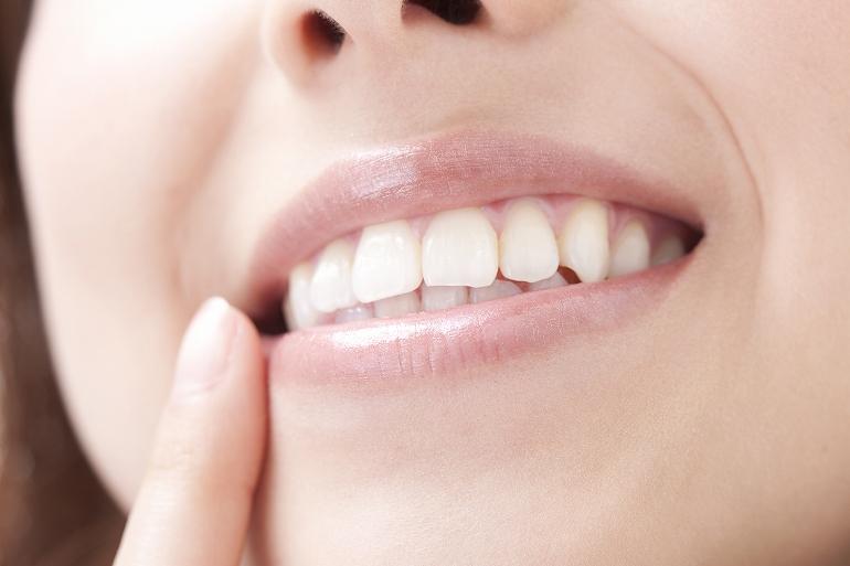 審美歯科って?