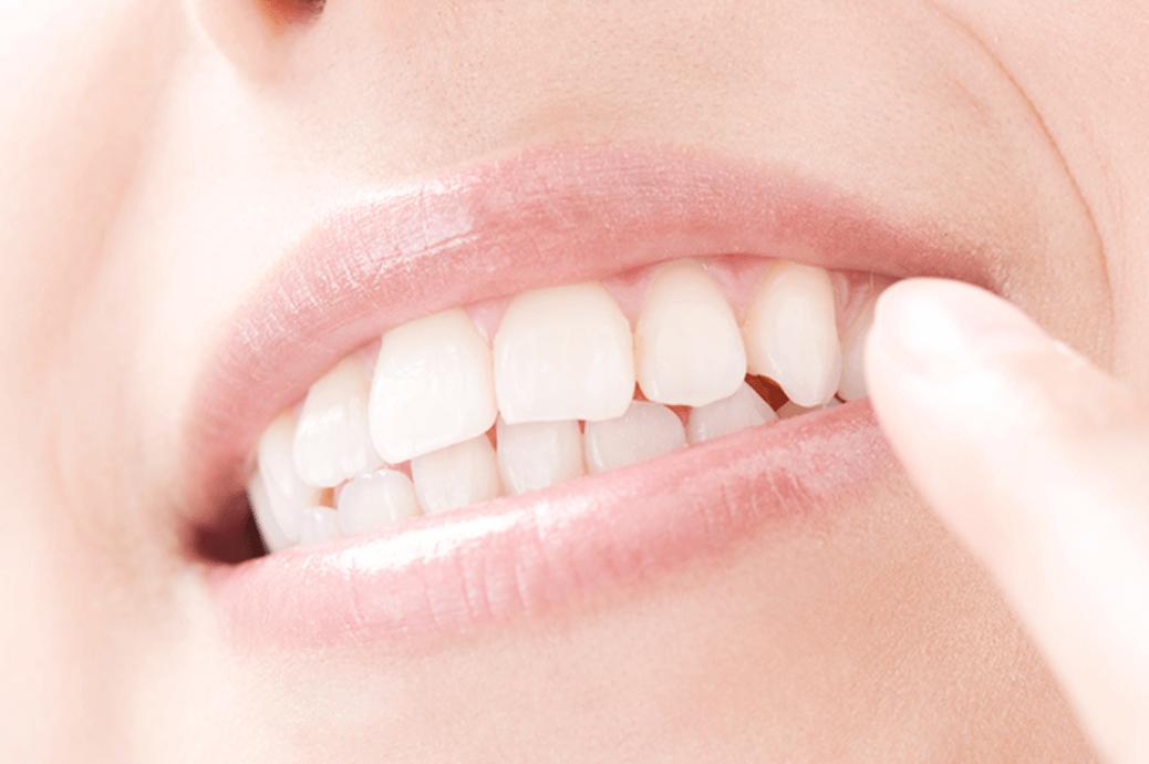 すきっ歯・出っ歯など部分的な歯並びでお悩みの方へ
